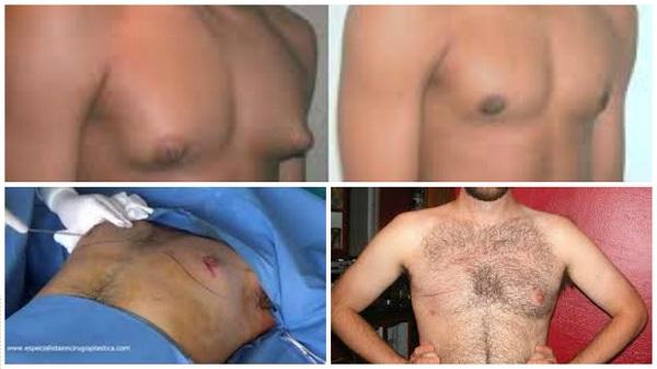 mamografias y masectomias en hombres