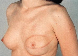 Reconstruccion mamaria: tumerectomia o mastectomia