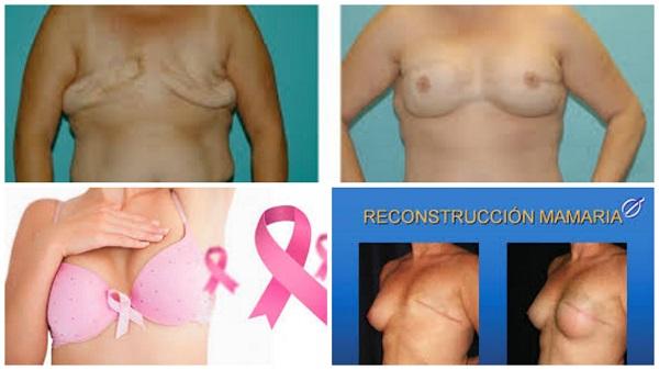 reconstrucción mamaria después de la masectomia