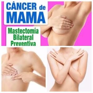 cancer de mama y reconstrucción