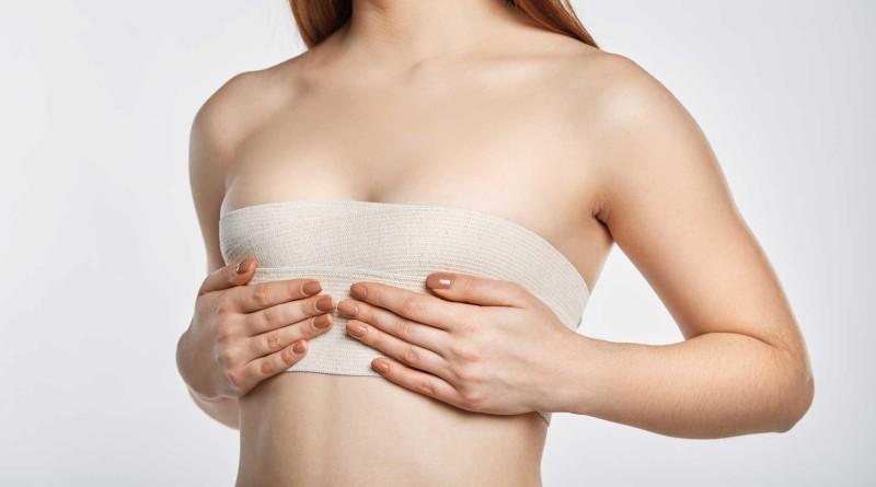 mujer tras una cirugía de senos, imagen representativa. Preguntas y respuestas sobre la cirugia de senos o mamoplastia